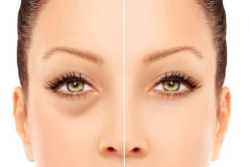 Modificări ale Ochilor în Sarcină